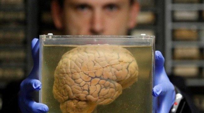 İnsan kafatasında yeni bir organ bulundu