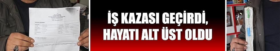 İŞ KAZASI GEÇİRDİ, HAYATI ALT ÜST OLDU