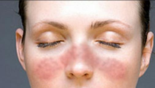 Lupus Hastalığı Nedir? Lupusun Belirtileri ve Nedenleri Nelerdir?