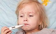 Kızamık Hastalığı, Belirtileri ve Tedavisi